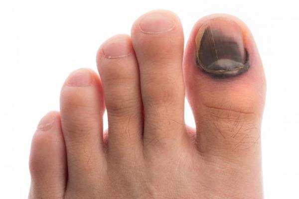 Se puede librarse del hongo de los pies por medio del vinagre